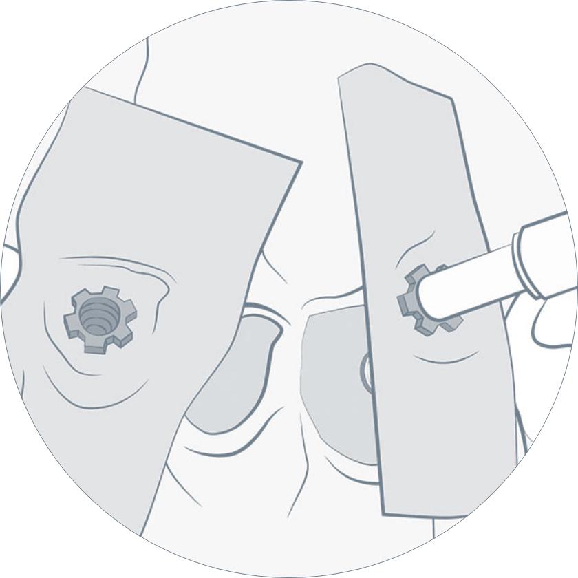 Colocación pilares para resina